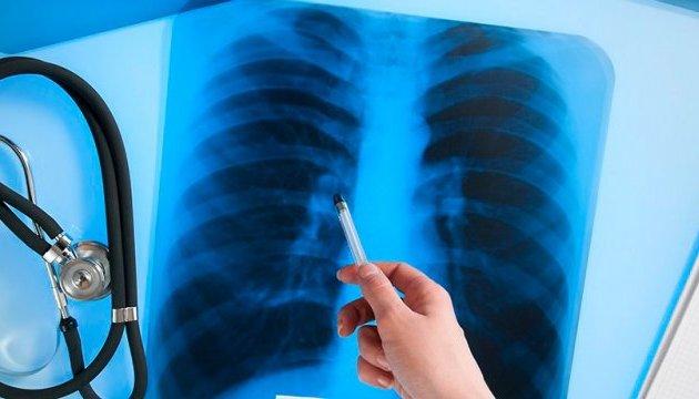 Четверть людей в мире инфицирована туберкулезом - ВОЗ
