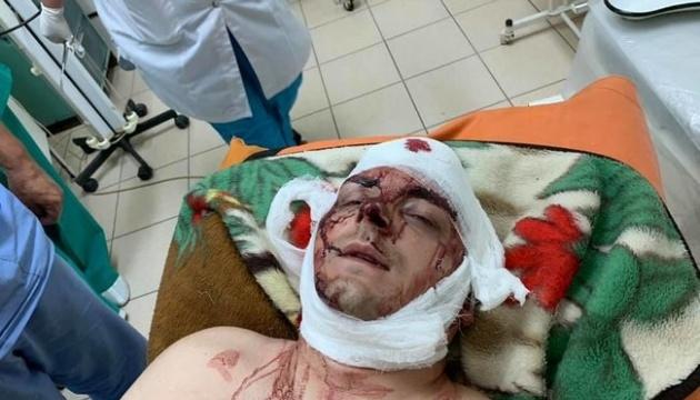 Раненого экс-мэра Конотопа везут в Киевский институт нейрохирургии