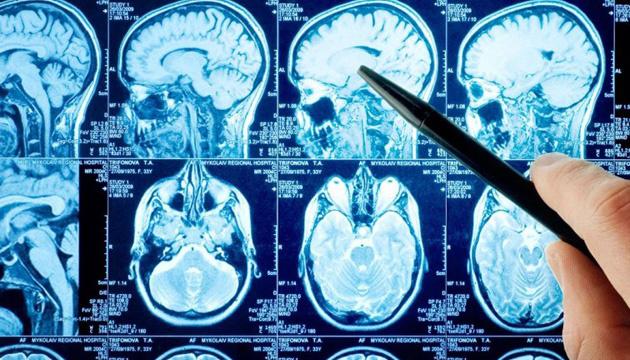 Лечение острого инсульта станет приоритетом в Программе медицинских гарантий - Минздрав