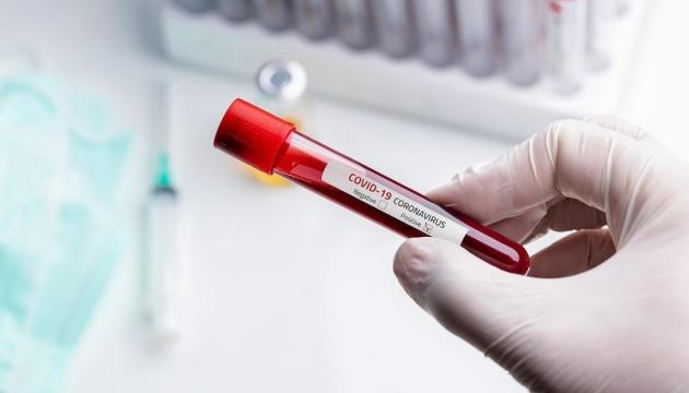 В Украине зафиксировали 1096 случаев коронавируса, 28 летальных