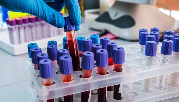 В Украине зарегистрировали 2203 случая коронавируса, 69 летальных